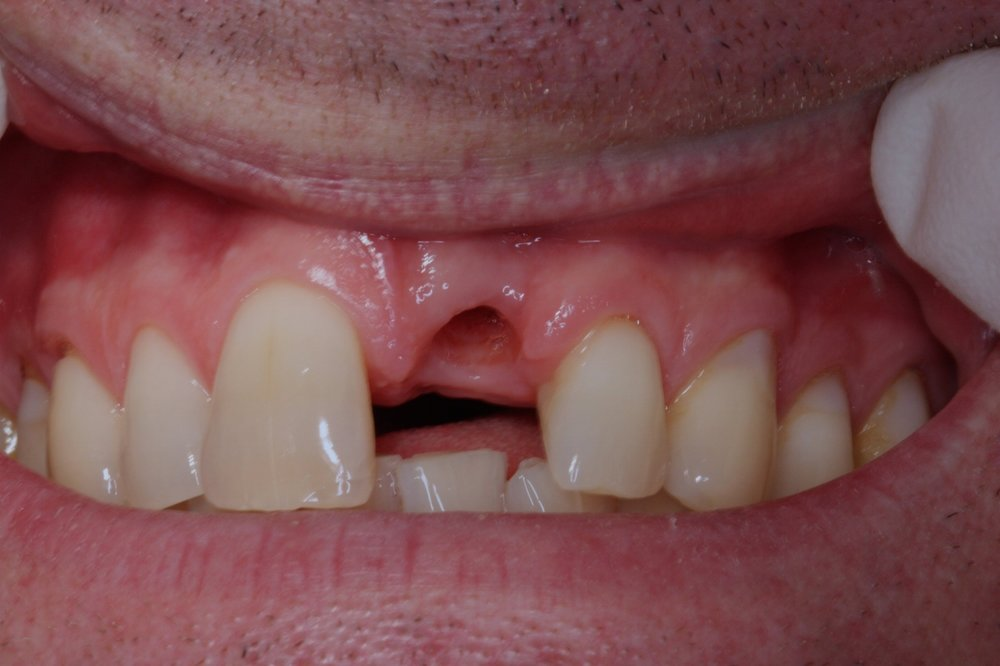 dental implant missing front tooth