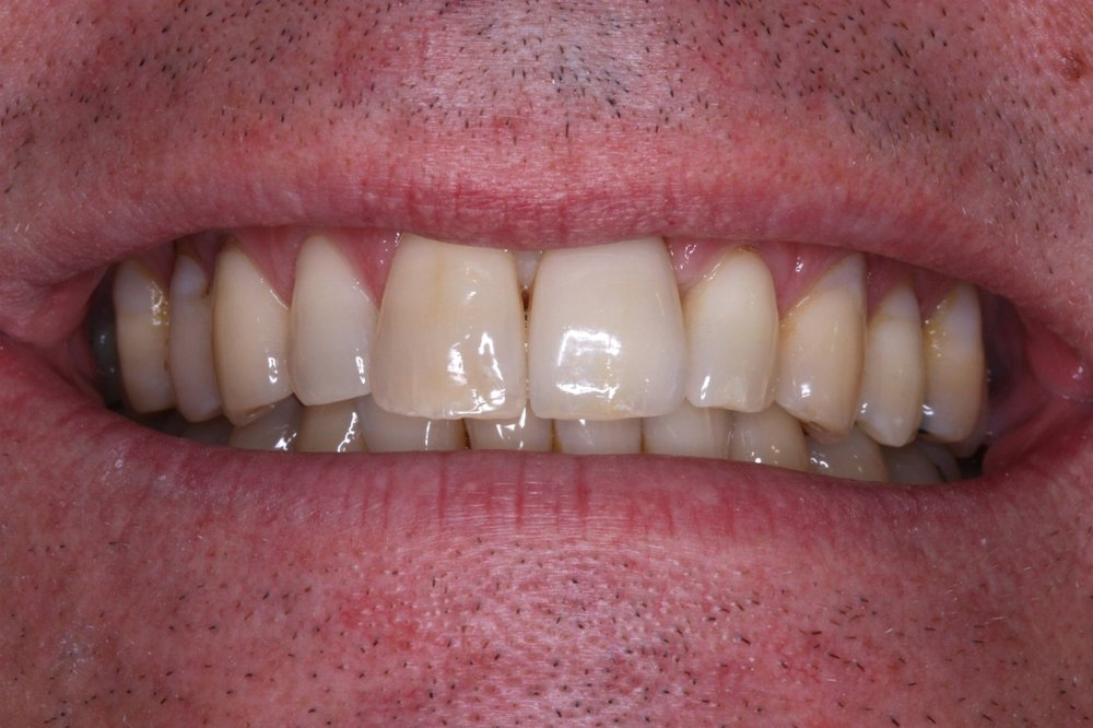 Gentleman in 40's missing left front tooth DUE TO TRAUMA  implant crown placed by Dr Leila Haywood FOLLOWING SPECIALIST IMPLANT PLACEMENT 2010, request for natural appearance