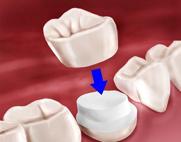 crown dentist brisbane
