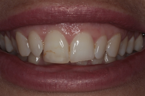 Before and after composite resin veneers