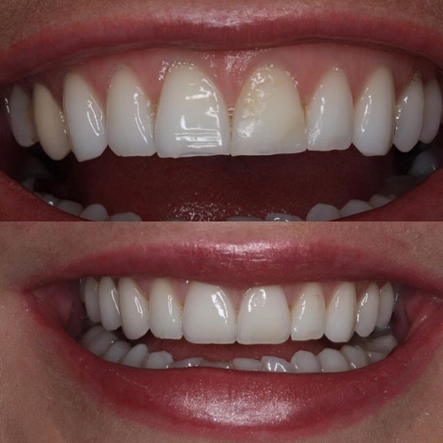 Smile Brisbane veneers