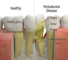 periodontal+disease.jpg