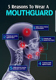 mouthguard rugby