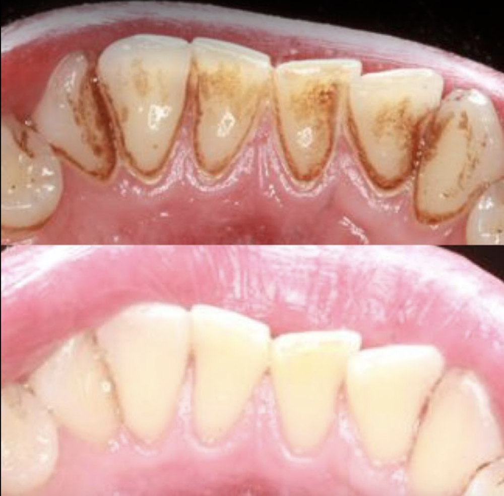 How professional scaling and cleaning resets the gum health