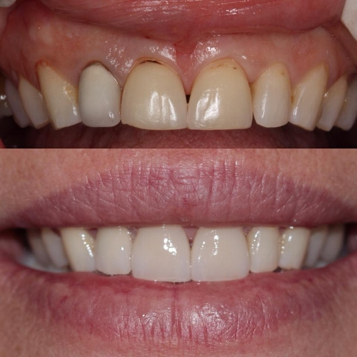 Porcelain veneers placed by Leila Haywood in 2013