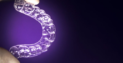Aligner treatment technology