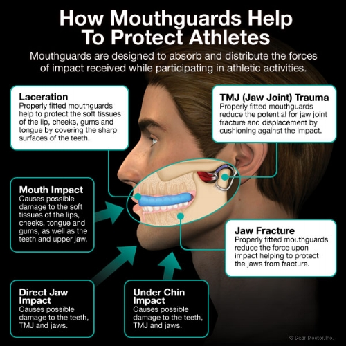 mouthguard Brisbane