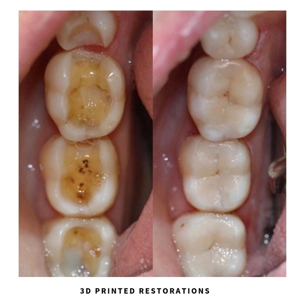 3D printed dental restorations