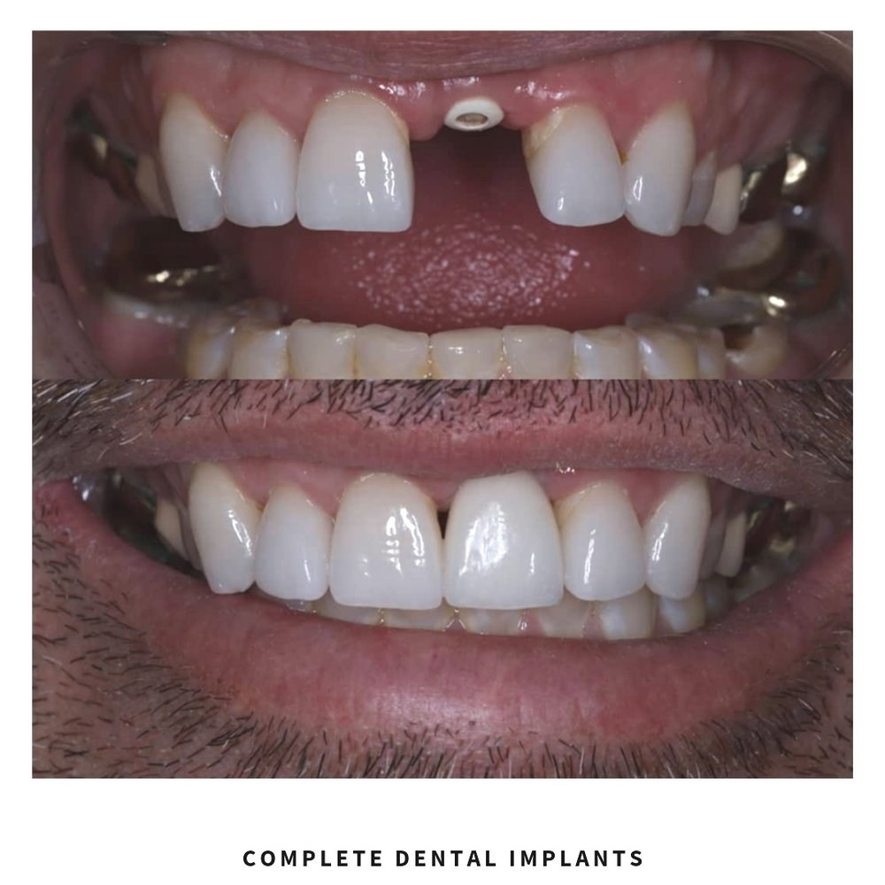 complete dental implants.jpg