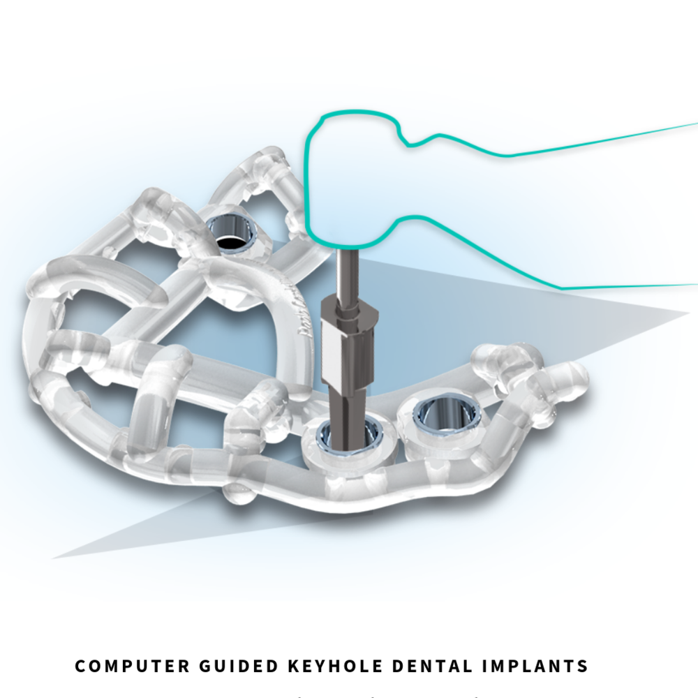 Computer guided Dental Implants