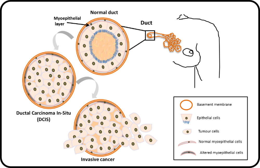 Schematic representation of transition from normal human breast to DCIS and invasive cancer.