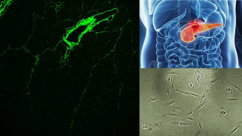 Clockwise from top right: location of pancreas; enhanced brightfield image of pancreatic stellate cells; two-photon second harmonic image of a normal pancreatic tissue showing collagen distribution around the pancreatic ducts.
