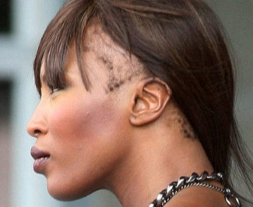 Supermodel Naomi Campbell suffers from hairline alopecia.  Most likely her hair has been pulled excessively at the hair line for a number of years.