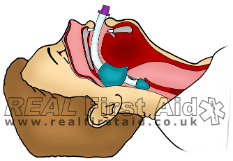 Airway LT.png