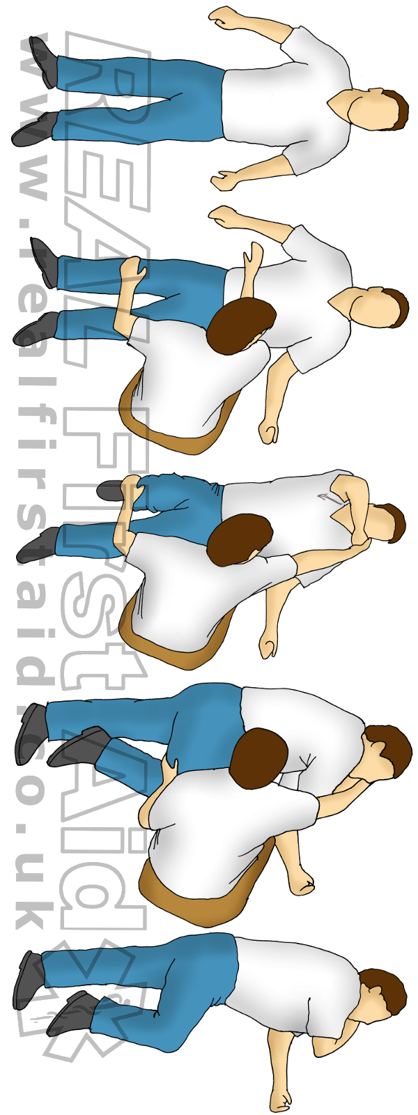 Safe Airway Position