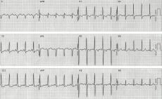 Example ECG