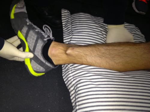 leg break.jpg