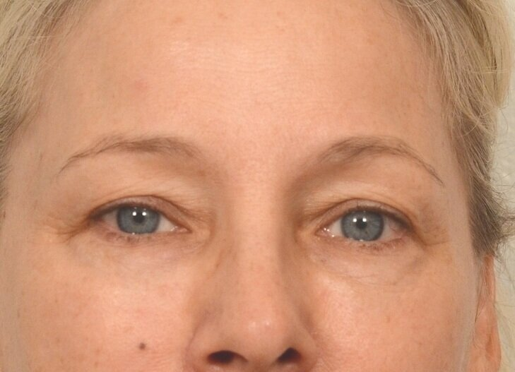 Under eye treatment with Restylane - After