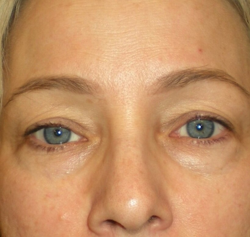Under eye treatment with Restylane - Before