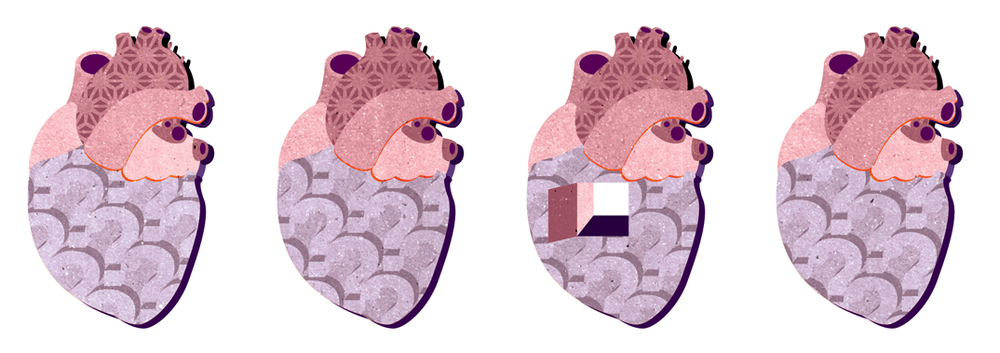 Project:Heart-Stopping (Four hearts, one hole: A problem worth fixing?),2013. Full page illustration and a decorative banner.Client:New Scientist