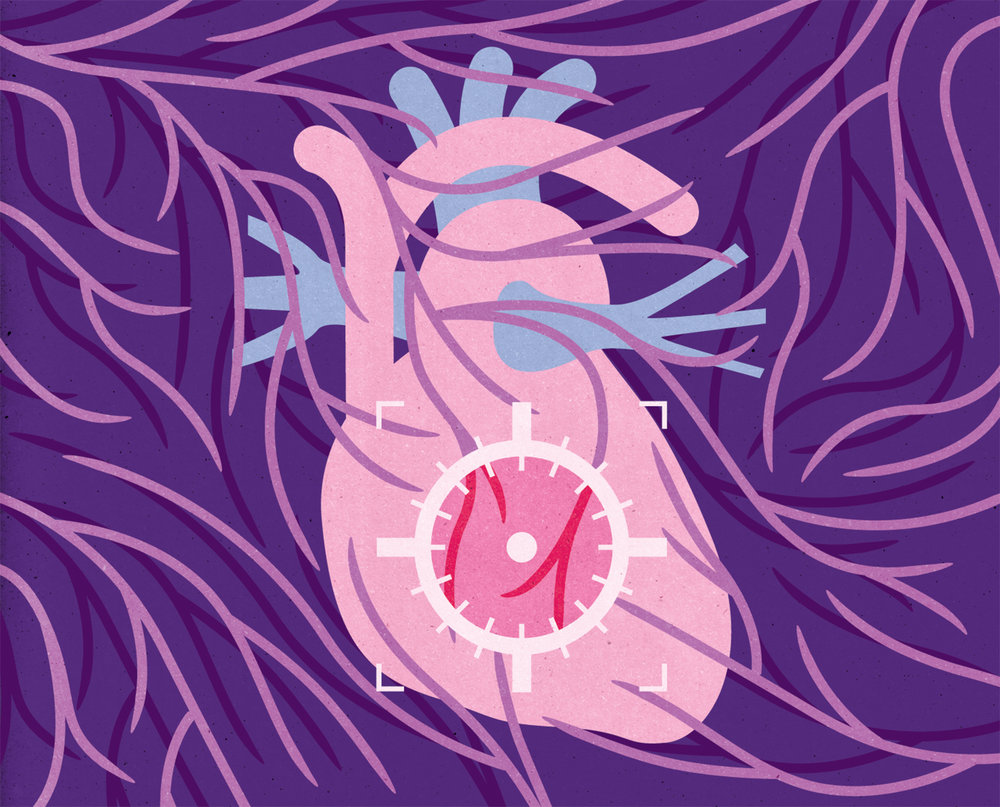 Project:    A new study should evaluate a new method of coronary artery surgery,    Client:    Forskning För Hälsa magazine by the Swedish Heart-Lung Foundation, 2018