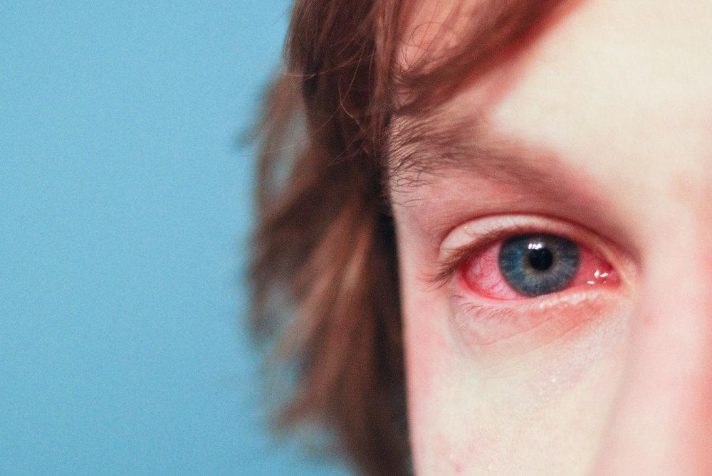 allerigies.jpg