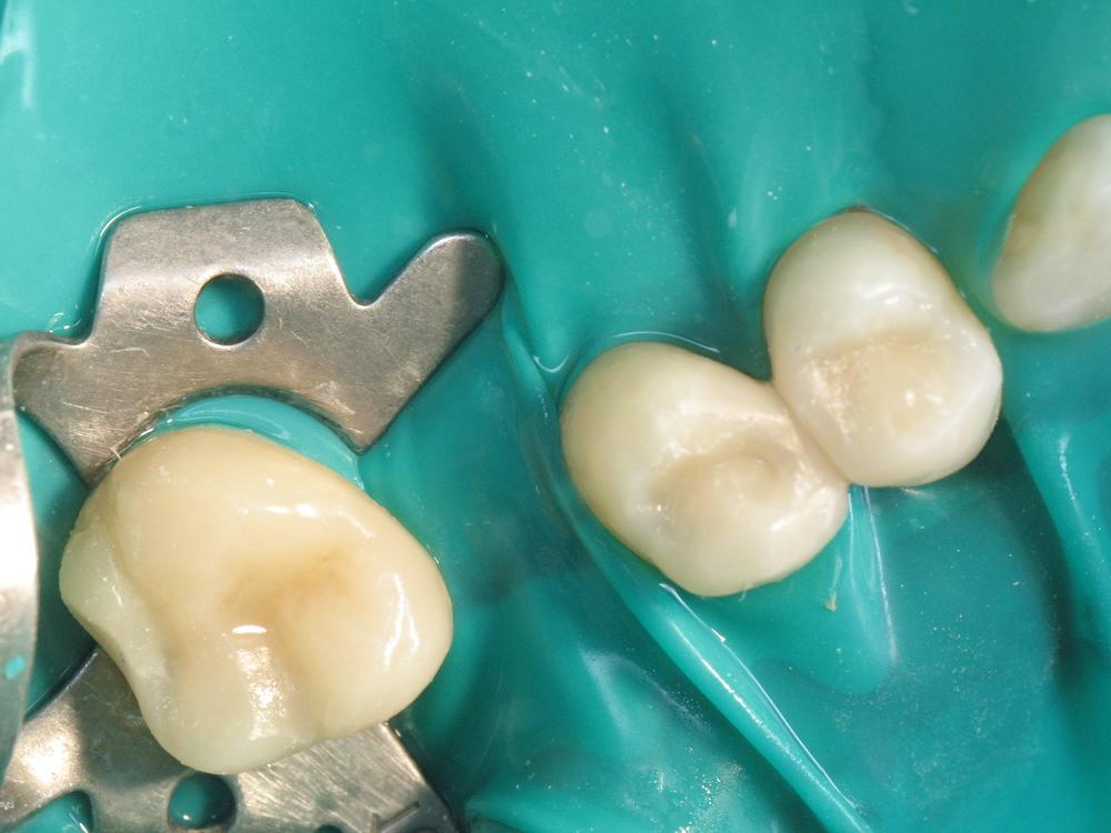Лікування та відновлення анатомічної форми зубів. Виконано за 2 години.