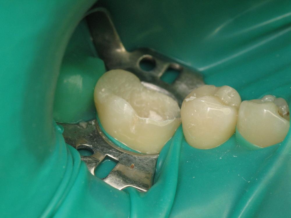 Відлом коронки зуба