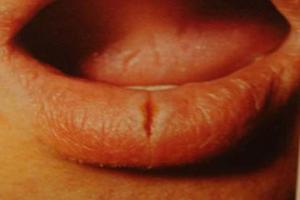 Хронічна тріщина губи