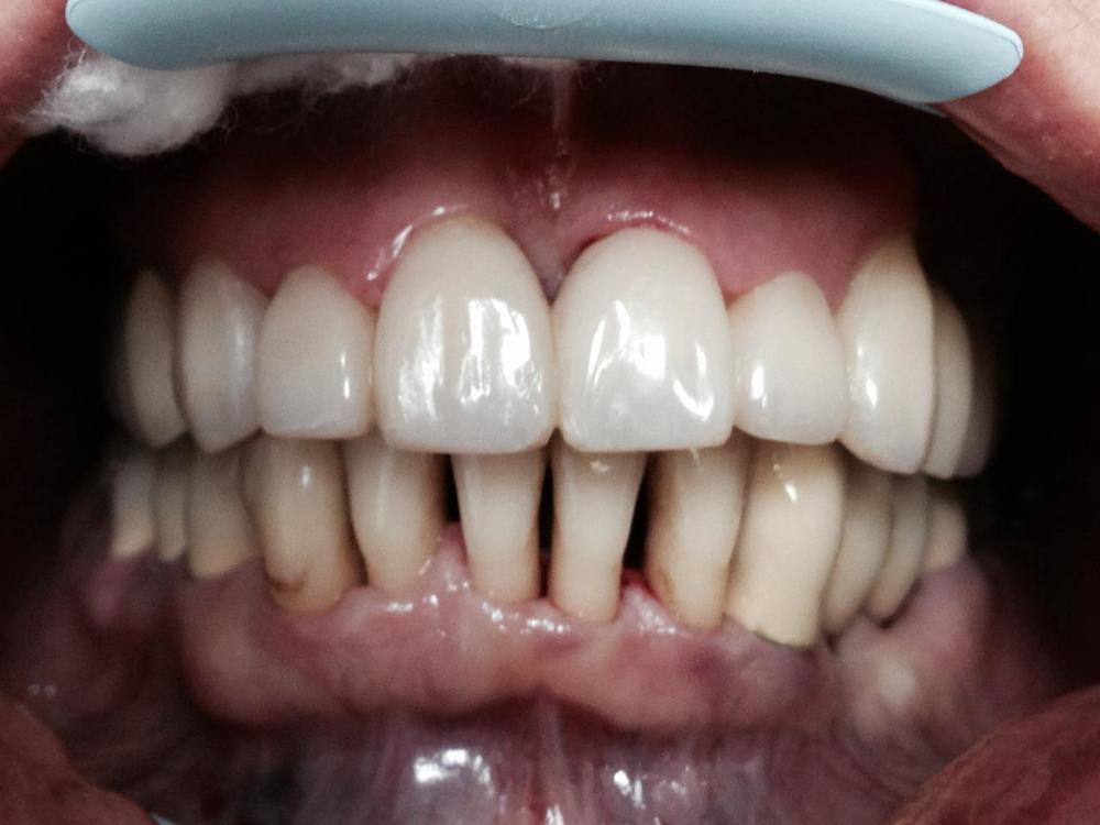 Стан пацієнтки після лікування зубів верхньої щелепи.Фото зробленовідразу після лікування