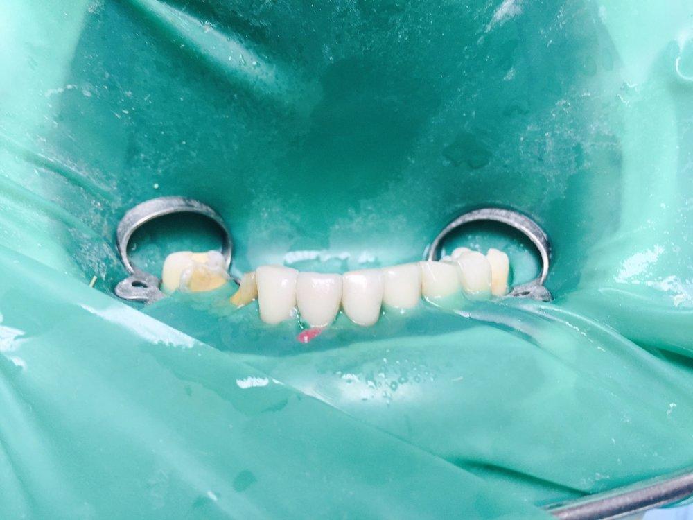 Стан пацієнта після лікування