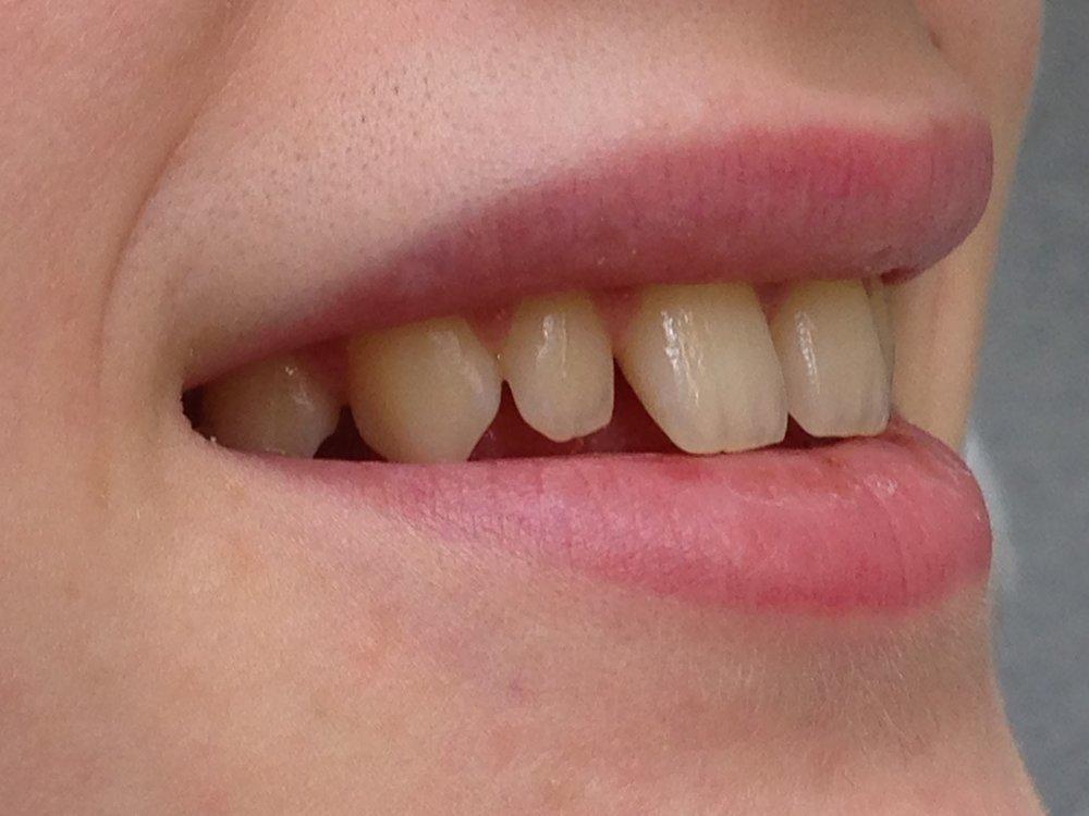 стоматологія-славна-реставрація-фронтальної-групи-зубів-до-1.jpg