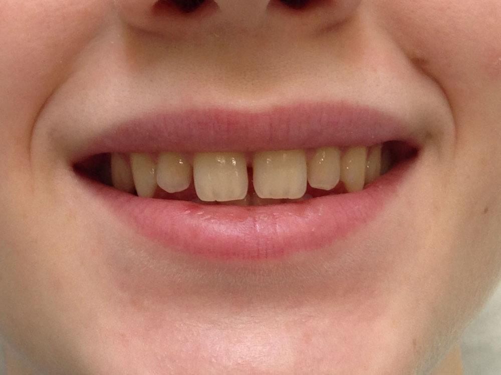 стоматологія-славна-реставрація-фронтальної-групи-зубів-до-2.jpg