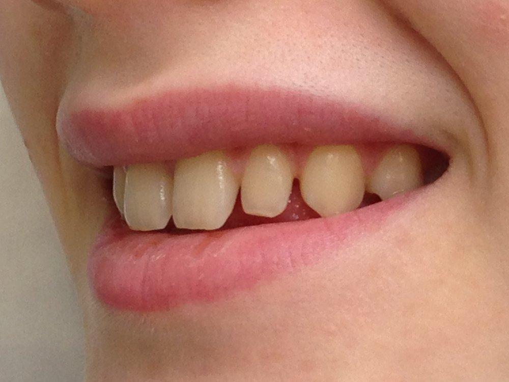 стоматологія-славна-реставрація-фронтальної-групи-зубів-до-3.jpg