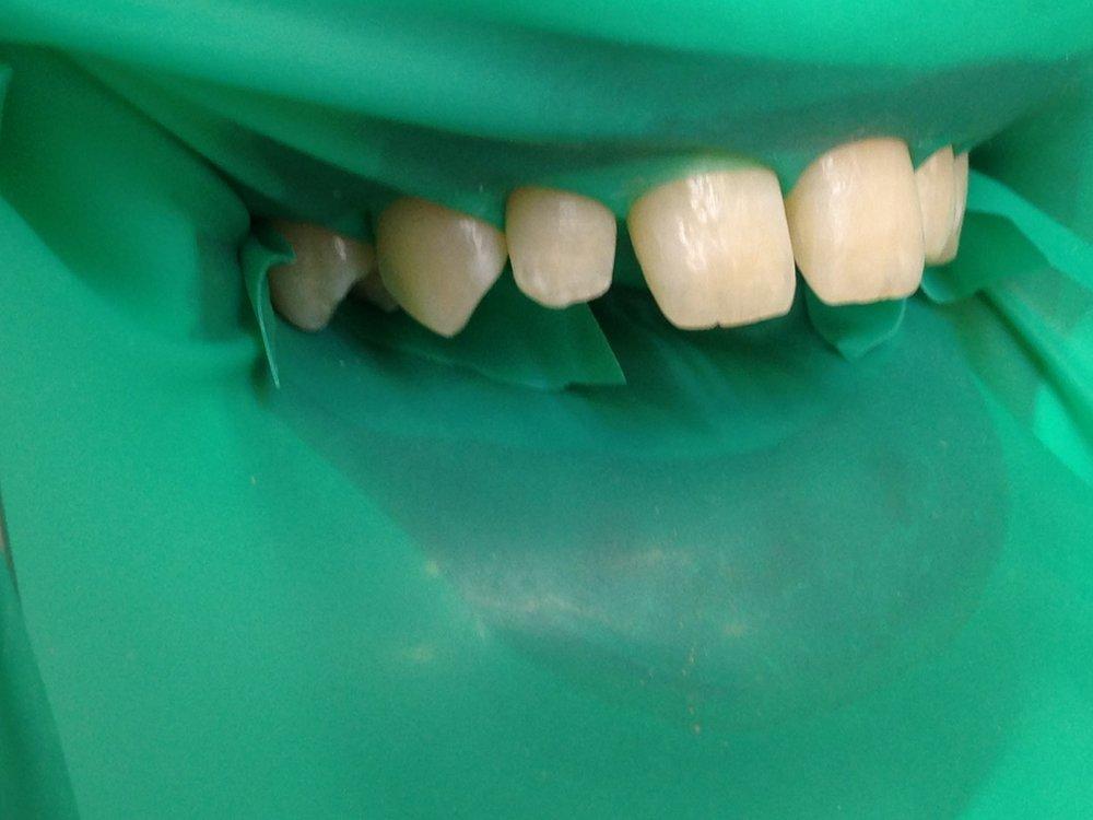 стоматологія-славна-реставрація-фронтальної-групи-зубів-процес-1.jpg