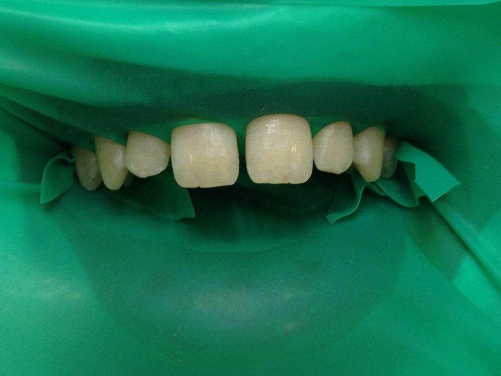 стоматологія-славна-реставрація-фронтальної-групи-зубів-процес-2.jpg