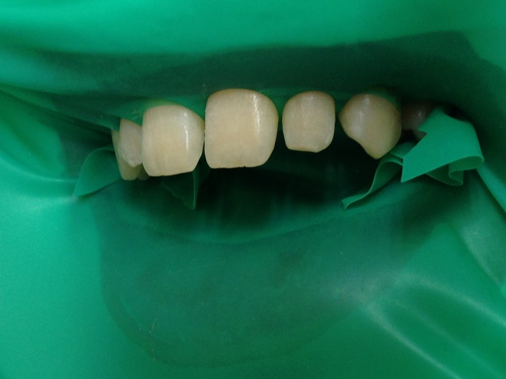 стоматологія-славна-реставрація-фронтальної-групи-зубів-процес-3.jpg