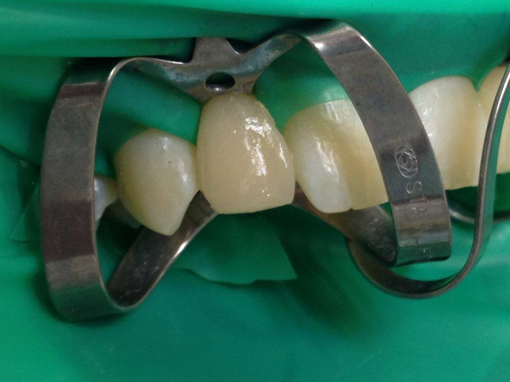 стоматологія-славна-реставрація-фронтальної-групи-зубів-процес-4.jpg