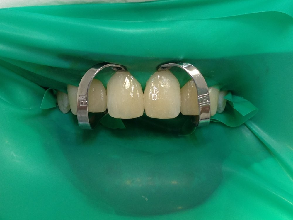стоматологія-славна-реставрація-фронтальної-групи-зубів-процес-5.jpg