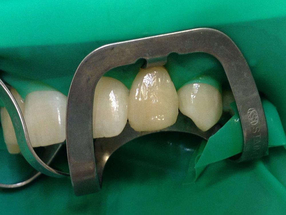 стоматологія-славна-реставрація-фронтальної-групи-зубів-процес-6.jpg