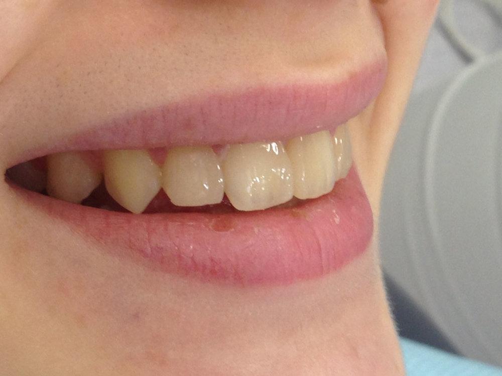 стоматологія-славна-реставрація-фронтальної-групи-зубів-після-1.jpg