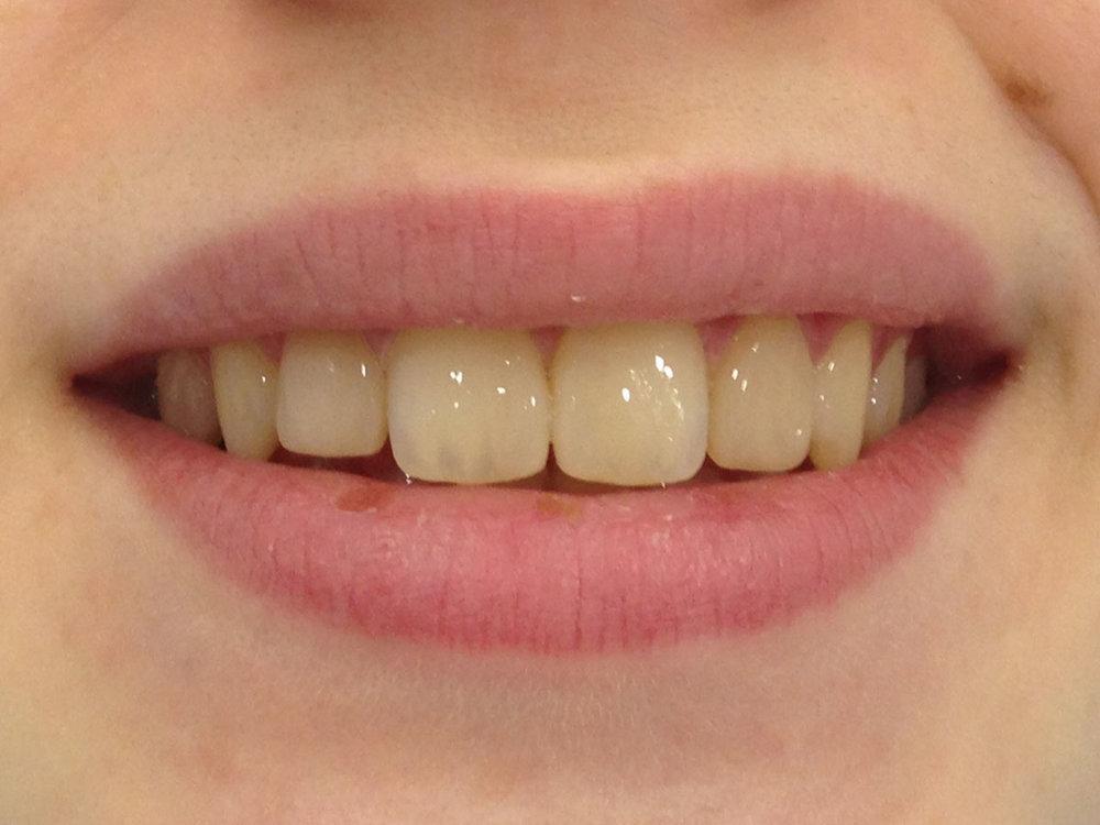 стоматологія-славна-реставрація-фронтальної-групи-зубів-після-2.jpg