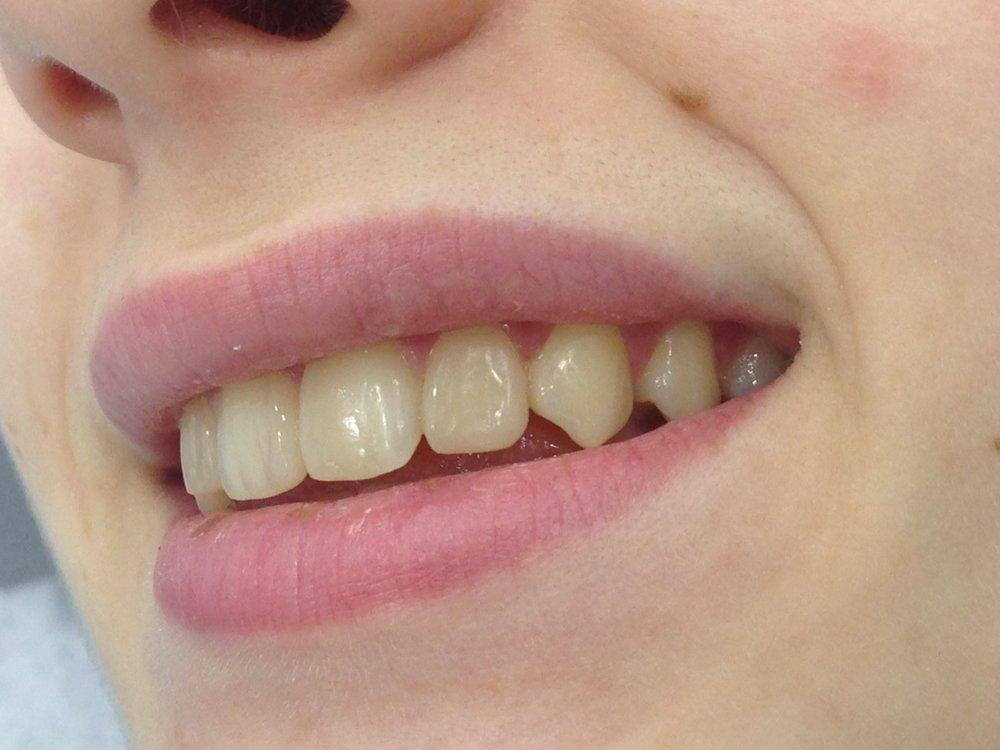 стоматологія-славна-реставрація-фронтальної-групи-зубів-після-3.jpg