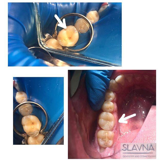 Практична робота лікаря-інтерна Дар'ї Тихомирової під керівництвом та наставництвом лікаря-стоматолога Юлії Олегівни.