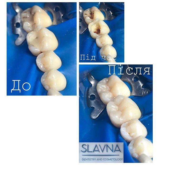 Лікування та відновлення зубів