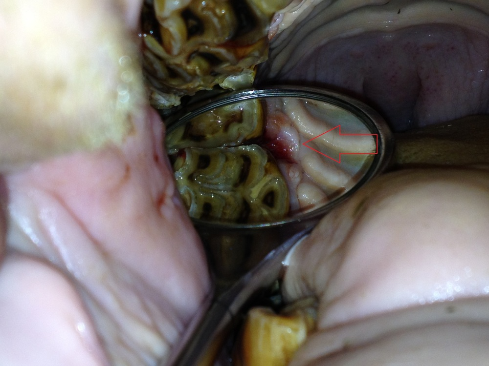 Periodontal pocket beside a cheek tooth- this is a relatively common finding in older horses. left untreated, the pocket gathers food and creates an infection which can abscess into a sinus cavity