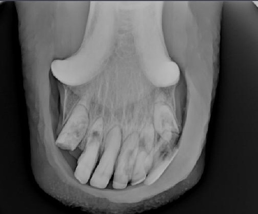 X-ray of lower incisors with Equine Odontoclastic Tooth Resorption and Hypercementosis with associated fracture of one tooth.