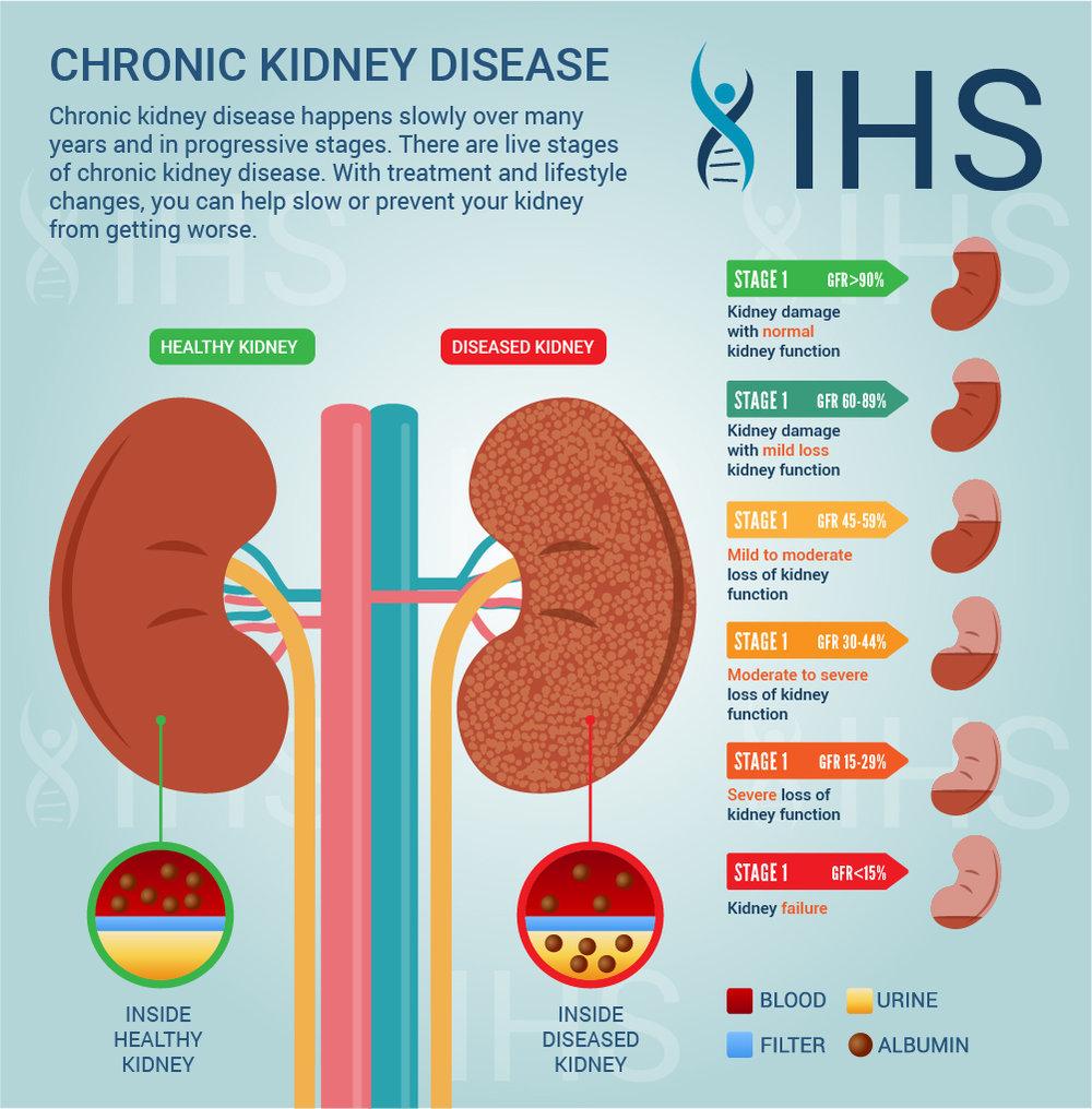 kidney infographic2 JPG medium.jpg