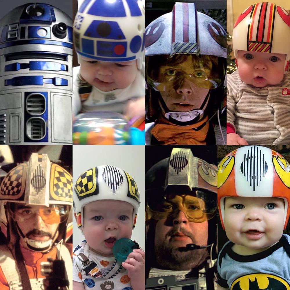 Dad Lovingly Designs Star Wars Corrective Helmets For His
