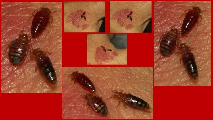 Views of 3 bed bugs as they feed  There are 2 females and one male. Bed bug picture   bed bug bites   bed bug photo   bugs that look